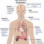 خلايا جذعية بشرية عالجت مرض السكري لدى الفئران ! 1