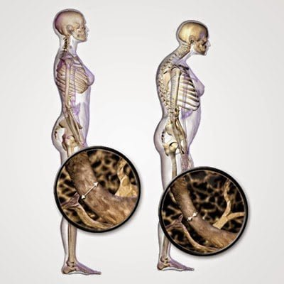 مخاطر نقص فيتامين د : الأعراض - الأسباب - العلاج