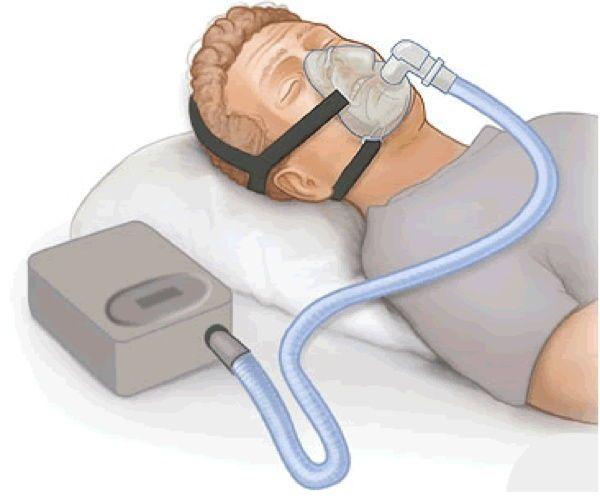 إنقطاع التنفس أثناء النوم و جهاز micro CPAP  بدون خراطيم و أسلاك لعلاج المشكلة 2
