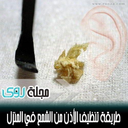 وصفة منزلية لتنظيف الأذن من الشمع في 60 ثانية 16