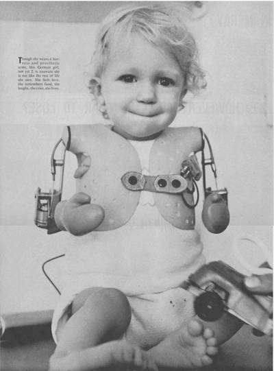الثاليدومايد و حكاية أسوأ عقار في تاريخ الطب الحديث 4